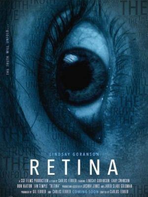 Сетчатка / Retina (2017)